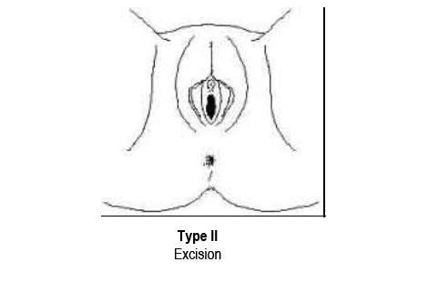 Type 2. Excision